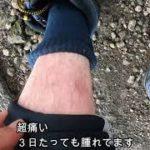 【夏磯の恐怖】スズメバチに刺された!!!!【激痛】